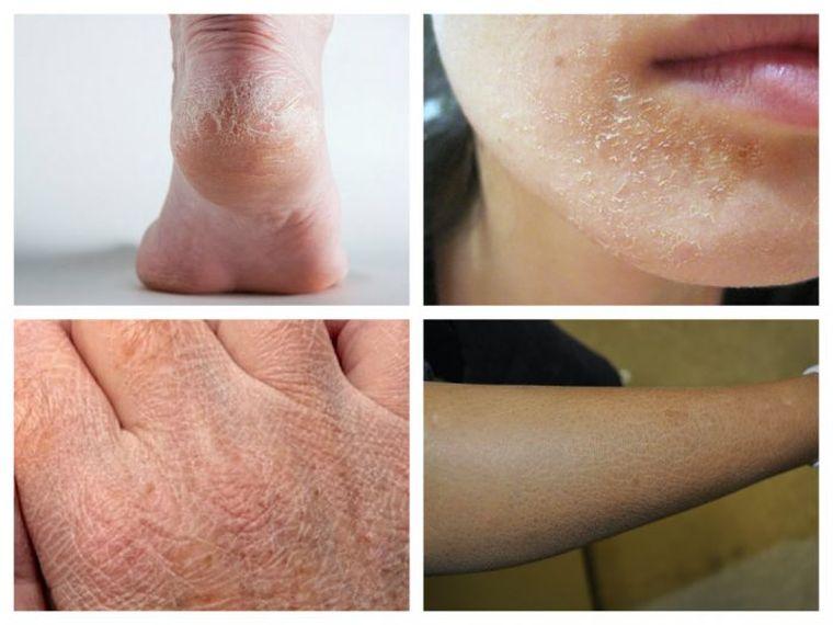 boala tiroidă și varicoasă)