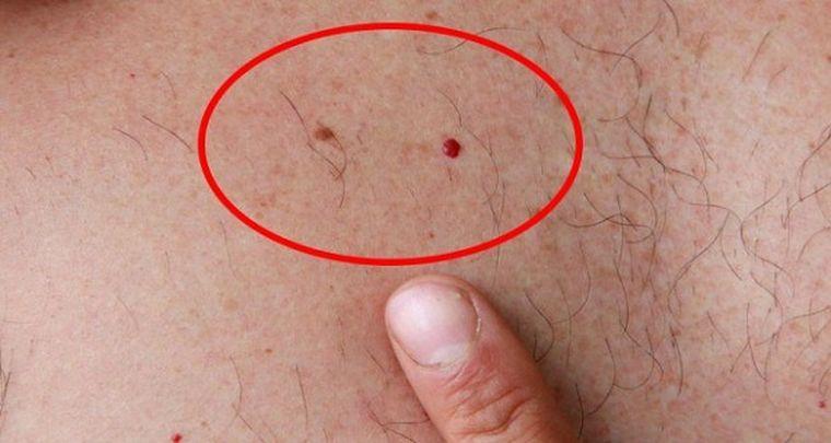 Dacă aveți aceste două alunițe trebuie să știți că este posibil ca una din ele să indice că aveți cancer!