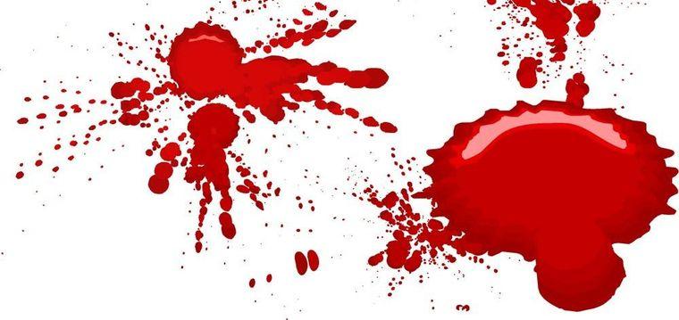 Interpretarea viselor: ce înseamnă când visezi sânge