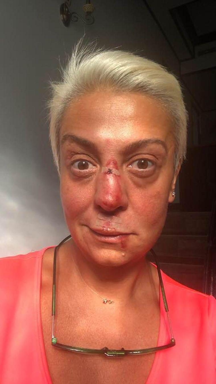 Dumnezeule! Monica Anghel, desfigurată! Ce a pățit artista