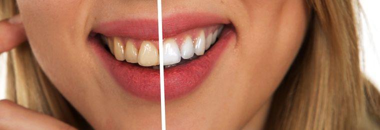 Cât de sigură este albirea dinților? Se face acasă sau în cabinet?