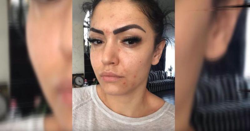 Cum arată Andreea Mantea complet nemachiată, după ce ani întregi a avut probleme cu acneea