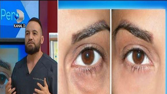 Dr. Ovidiu Peneș: Ce boli ascund cearcănele și pungile de sub ochi