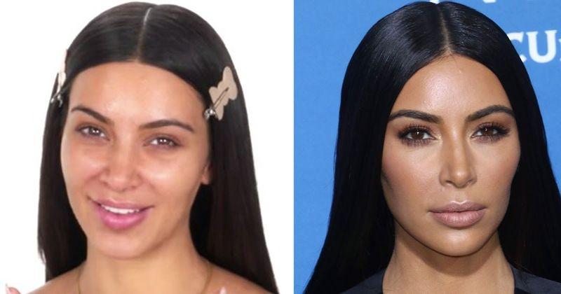 Kim Kardashians