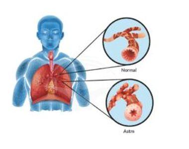 De ce la ce vârstă apare astmul? Ce complicații apar dacă nu tratăm la timp astmul?