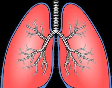 Embolia pulmonară, simptome, cauze și tratament. Semne de alarmă că un cheag de sânge a...