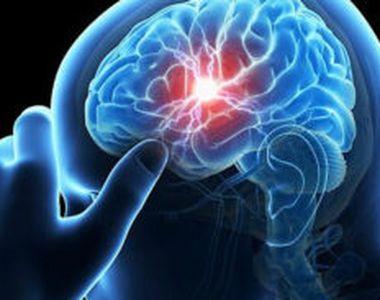 Tratamentul care salvează viața celor cu accident vascular cerebral. Dizolvă cheagul de...