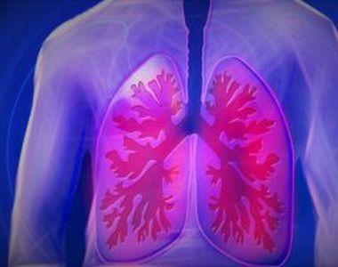 """Vitamina care poate preveni pneumonia. Un adevărat """"combustibil"""" pentru sistemul imunitar"""